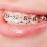 Giải pháp niềng răng rẻ nhất hiện nay
