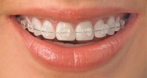 Những phương pháp niềng răng thẩm mỹ