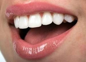 Bọc răng sứ áp dụng cho những trường hợp nào