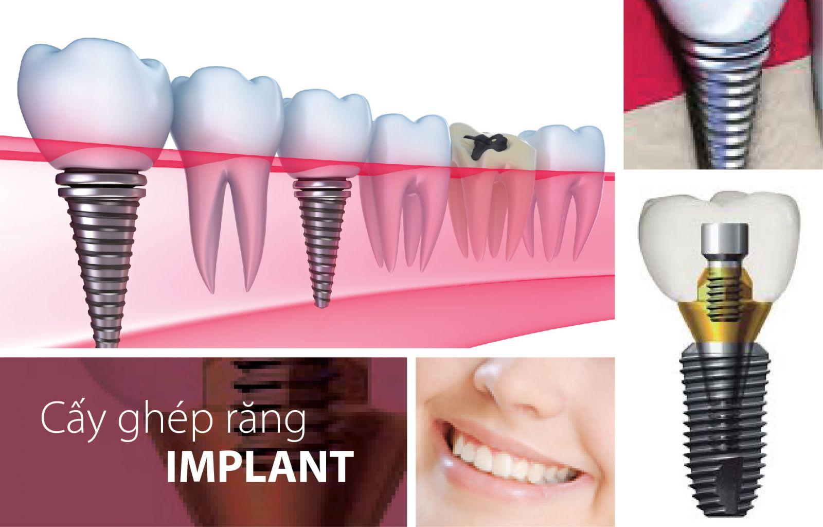 Cấy ghép răng implant có đau không ?