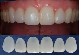 Tẩy trắng răng giá bao nhiêu ?