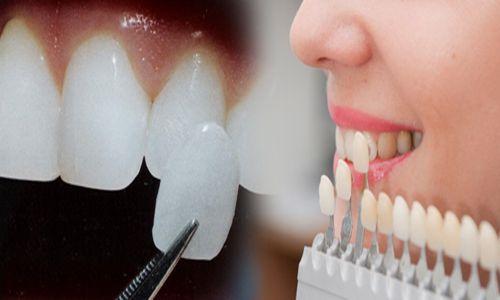 Răng sứ Venus có tốt không ?
