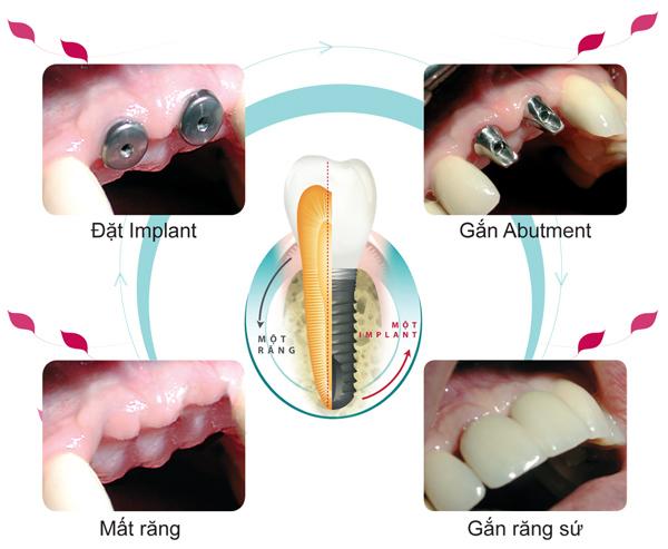 Implant tồn tại trong thời gian bao lâu ?
