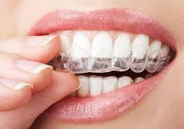 5 loại niềng răng của nha khoa thế giới