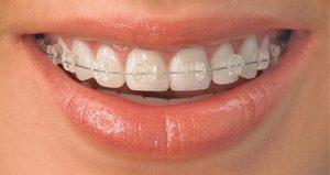 niềng răng giá rẻ ở đau tại tphcm