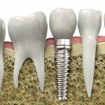 Phẫu thuật nâng xoang hàm trong cấy ghép implant