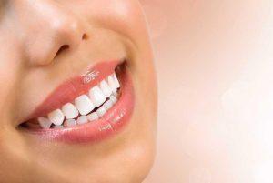 quy trình tẩy trắng răng bằng laser như thế nào