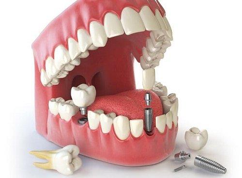 Trồng răng cửa implant giá bao nhiêu? 1
