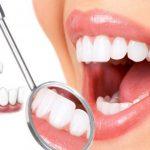 Trồng răng hàm giá bao nhiêu tiền?