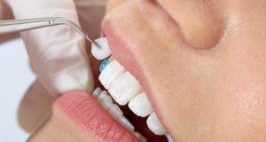 Dán răng sứ veneer ở đâu tốt TPHCM