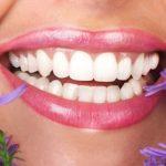 Tẩy trắng răng thẩm mỹ