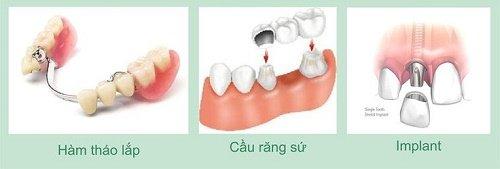 Trồng răng giả hàm dưới cần lưu ý điều gì? 2