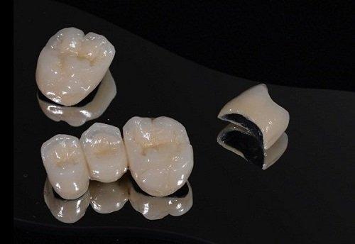 Bọc răng sứ kim loại giá bao nhiêu? Cần tham khảo gấp 1