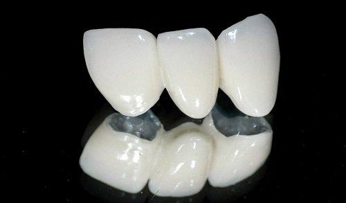 Bọc răng sứ có nguy hiểm không? Lời giải đáp tốt nhất cho bạn 3