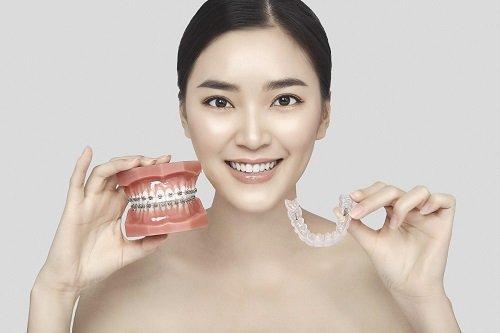 Niềng răng có nguy hiểm không? Lời khuyên từ nha khoa 3
