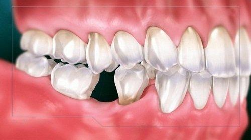 Trồng răng giả có lâu không? Thực hiện trong bao lâu? 1