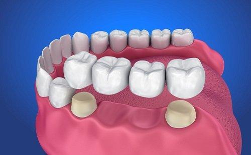 Trồng răng bằng cầu răng cho trường hợp nào? 2