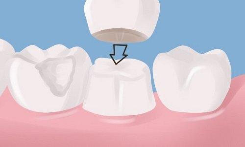Chụp răng sứ giá bao nhiêu tiền tại nha khoa? 2